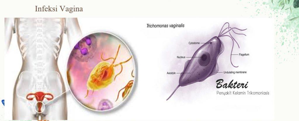 Penularan Penyakit Seksual infeksi vagina dan Trikomoniasis