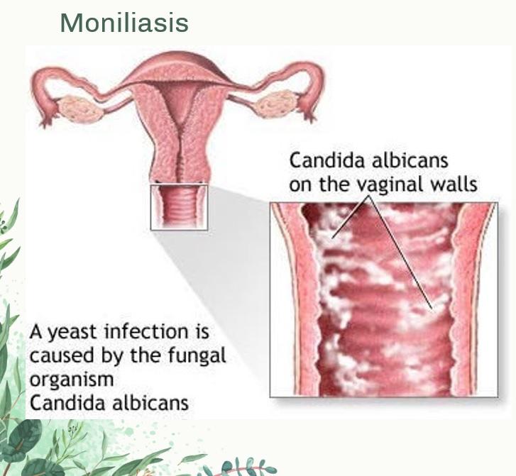 Penularan Penyakit Seksual Moniliasis